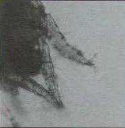 """Клещ Otodectes cynotis: вид задней части тела. Обратите внимание на чашеподобные """"присоски"""" и нерасчлененные конечности."""