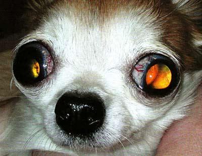 Факотопическая билатеральная терминальная глаукома. Люксация хрусталика в заднюю камеру глаза. ВГД 53 мм