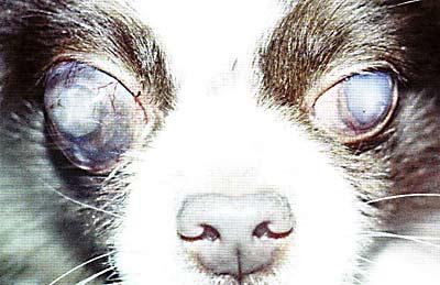 Факоморфическая терминальная глаукома, увеит. ВГД: левый глаз 32 мм, правый 49 мм