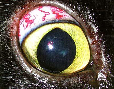 Первичная открытоугольная глаукома. Синдром «кобры». ВГД 30 мм