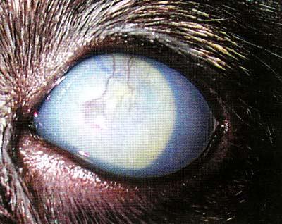 Острый приступ глаукомы, отек роговицы