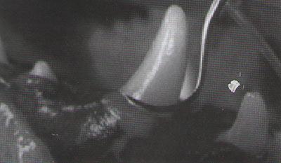 Рис. 3. Удаление наддесневого налета