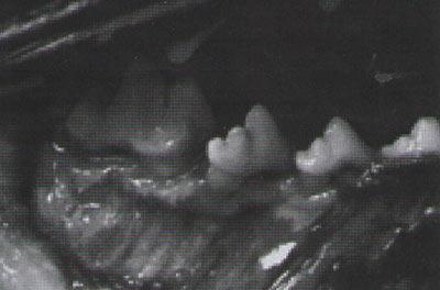 Рис. 13. Фуркация III класса. Костная резорбция полностью проходит через фуркацию. Зонд через фуркацию проходит с одной поверхности зуба на другую