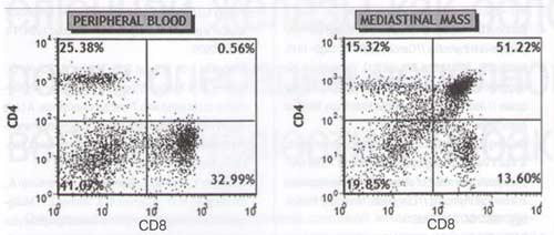 Рис. 5. Точечные диаграммы состава периферической крови в день операции (слева) и состава удаленного новообразования (справа), окрашенных флуоресцина изотиоцианатом с антителами к CD8 и фикоэритрином с антителами к CD4, показывающие популяцию лимфоцитов на основании их размера и характера рассеяния. Квадранты были установлены с использованием контрольных изотипов. Мертвые клетки исключали путем окраски йодидом пропидия.